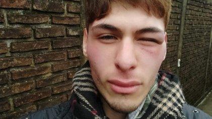 Ataque homofóbico a estudiante de Periodismo en La Plata